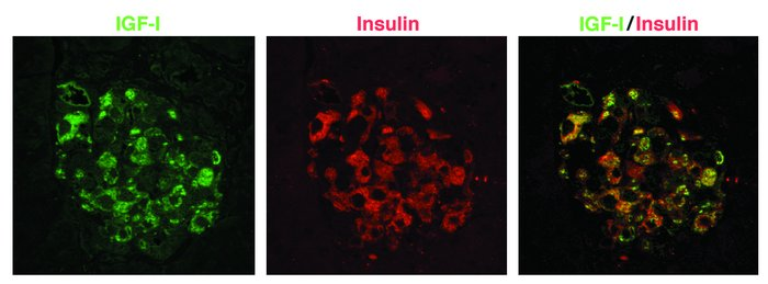 Colocalization of IGF-I and insulin in β cells from transgenic mice. Fou...