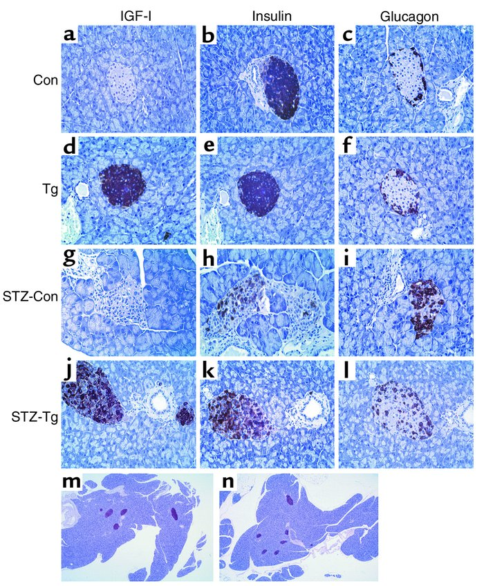 Immunohistochemical analysis of IGF-I, glucagon, and insulin expression ...