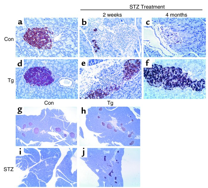 Immunohistochemical analysis of insulin expression in islets from N4 CD-...