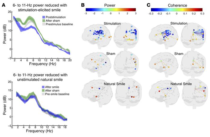 Distinct neural activity patterns associated with stimulation-induced mi...