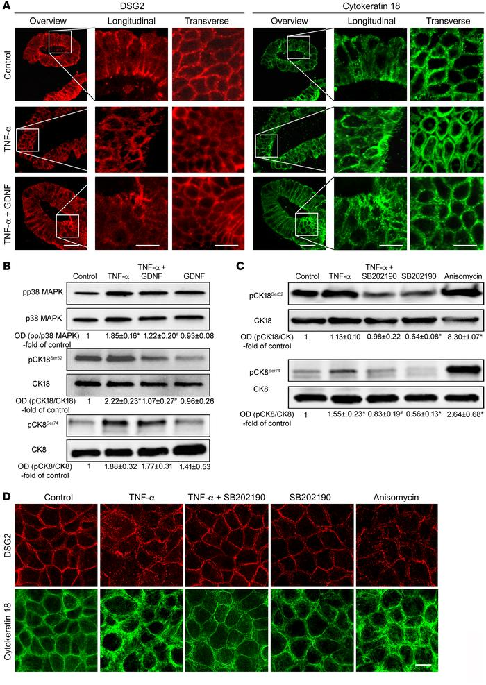 GDNF effects in human enteroids and TNF-α–induced cytokeratin phosphoryl...
