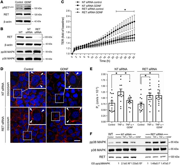 GDNF effects in enterocytes are RET dependent. (A and B) Western blots w...