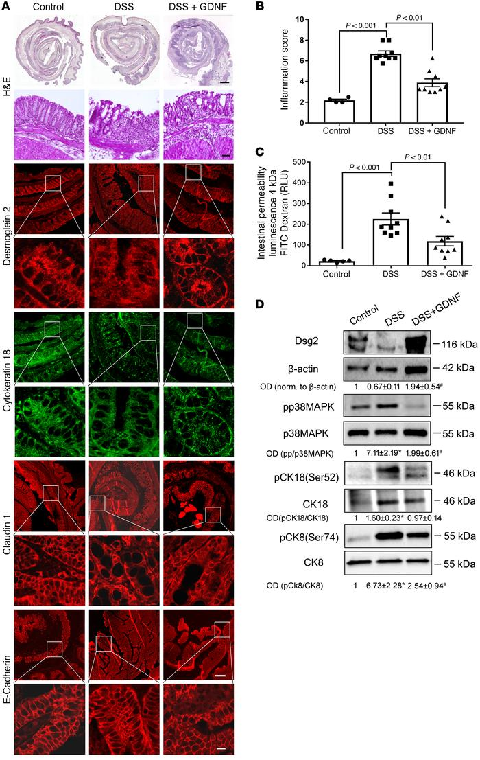 GDNF stabilizes intestinal barrier function in DSS-induced colitis. (A) ...