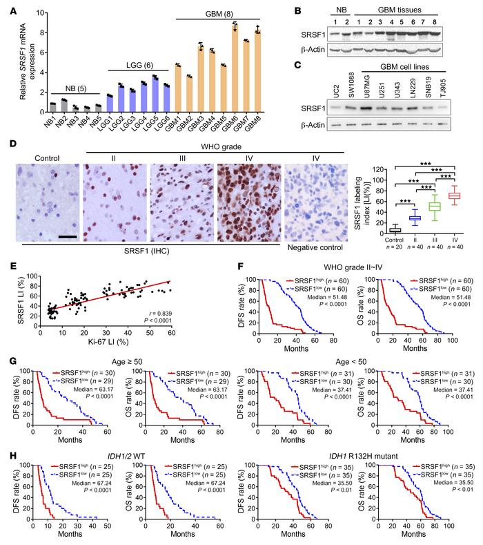 SRSF1 overexpression is correlated with excessive glioma cell proliferat...