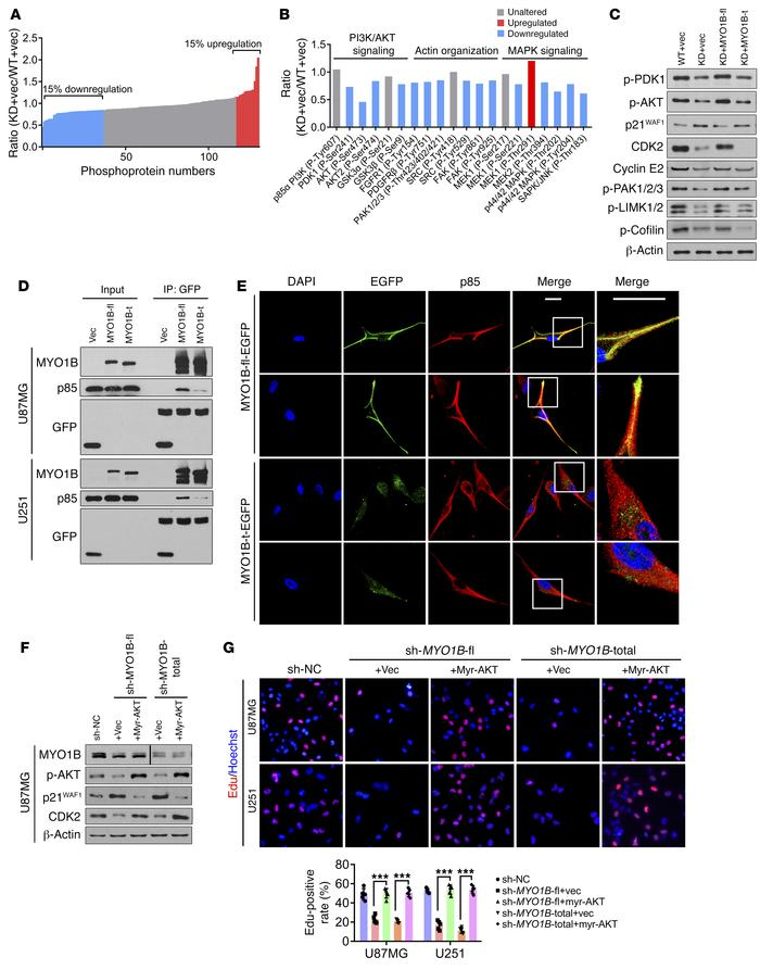 SRSF1-guided MYO1B splicing determines cell fate through the PDK1/AKT an...