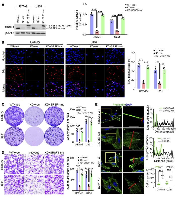 SRSF1 increases the tumorigenic abilities of GBM cells and induces reorg...