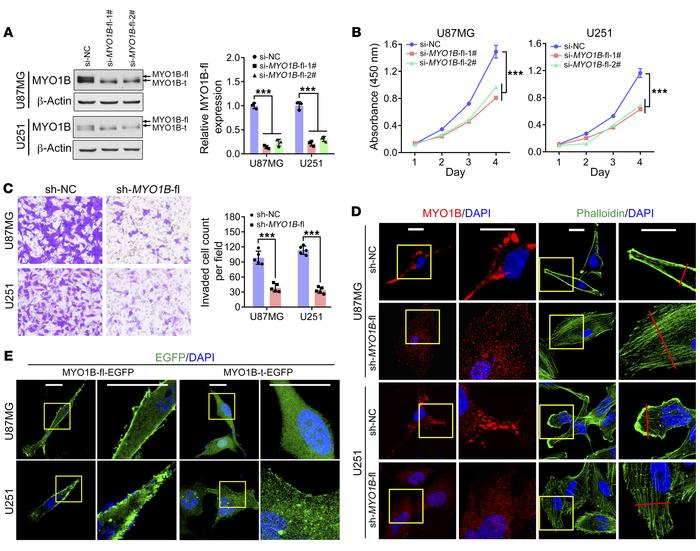 MYO1B-fl promotes GBM malignancy, and MYO1B isoforms differ in subcellul...