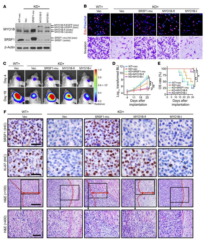 MYO1B-fl partially recapitulates the SRSF1-mediated tumor-promoting phen...