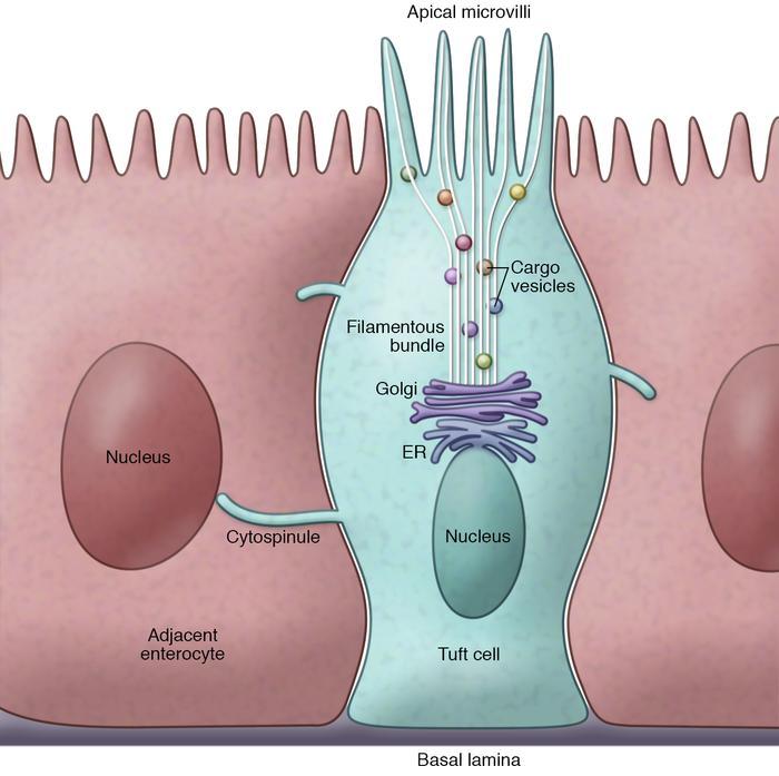Jci Interpreting Heterogeneity In Intestinal Tuft Cell Structure