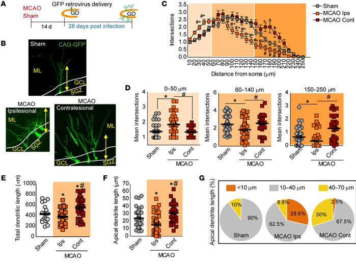 Altered features of newborn neurons induced by stroke. (A) Experimental ...