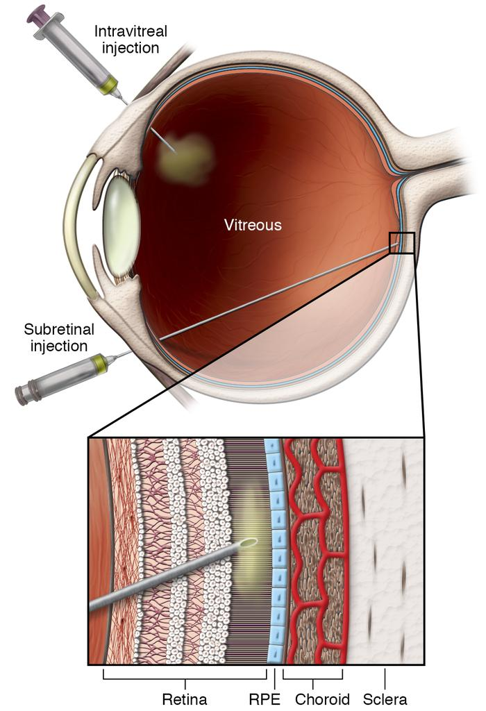 Intravitreal versus subretinal delivery. Intravitreal delivery is less t...
