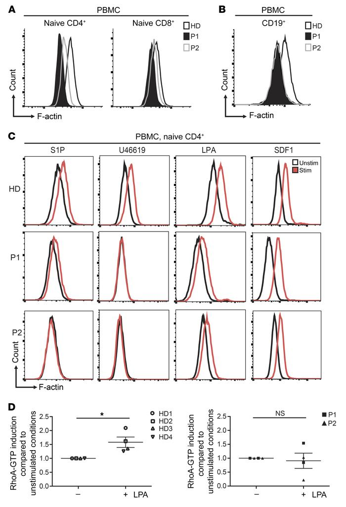 Reduced polymerized actin in lymphocytes is a signature of ARHGEF1 defic...
