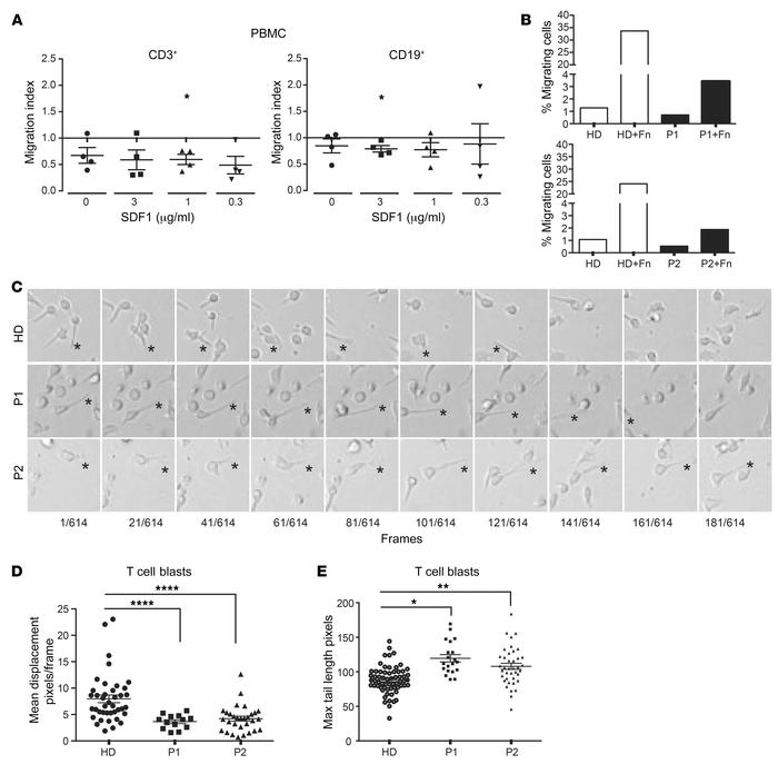ARHGEF1-deficient lymphocytes exhibit impaired motility. (A) SDF1-direct...