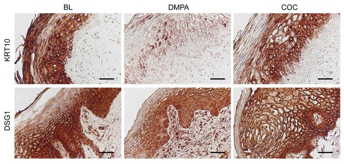 Representative images of immunohistochemical detection of KRT10 and DSG1...