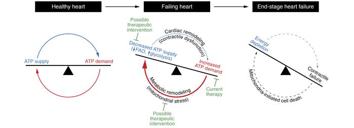 Mismatch of energy demand and generation drives the development of heart...