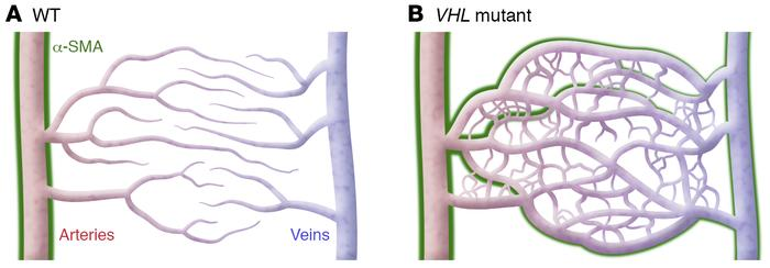 Vascular dysmorphogenesis during VHL mutations. Inducing VHL mutations e...