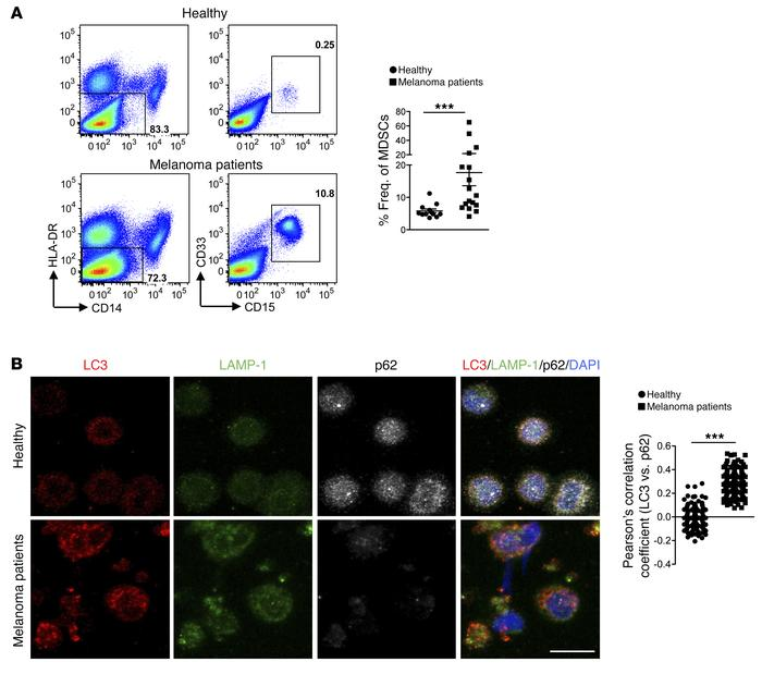 Enhanced autophagy in MDSCs from patients with melanoma. (A) Gating stra...