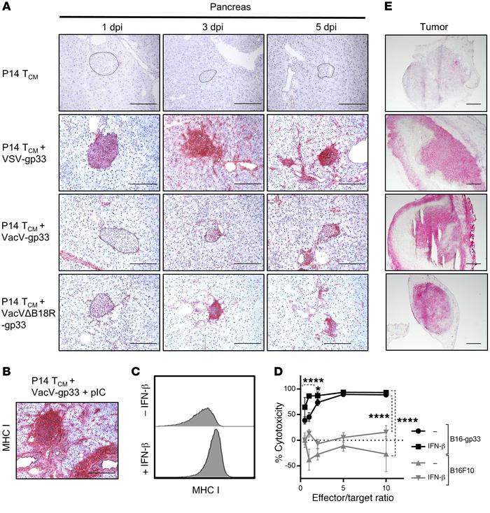 IFN-α/-β–induced upregulation of MHC I enhances antigen-specific cytotox...