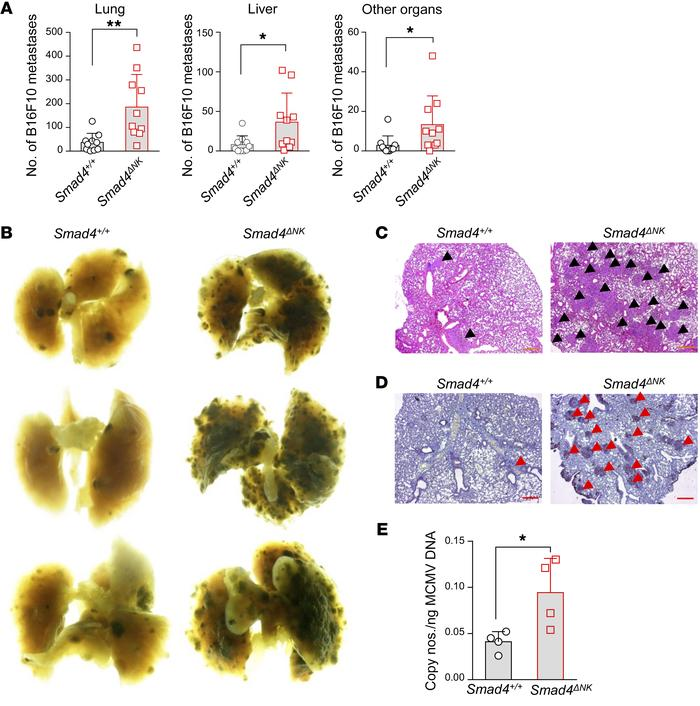 Smad4-deficient NK cells fail to control tumor metastases and MCMV infe...