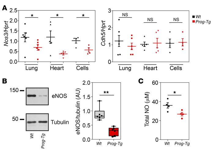 Downregulation of antifibrotic eNOS. (A) Expression of Nos3 and Cdh5 mRN...
