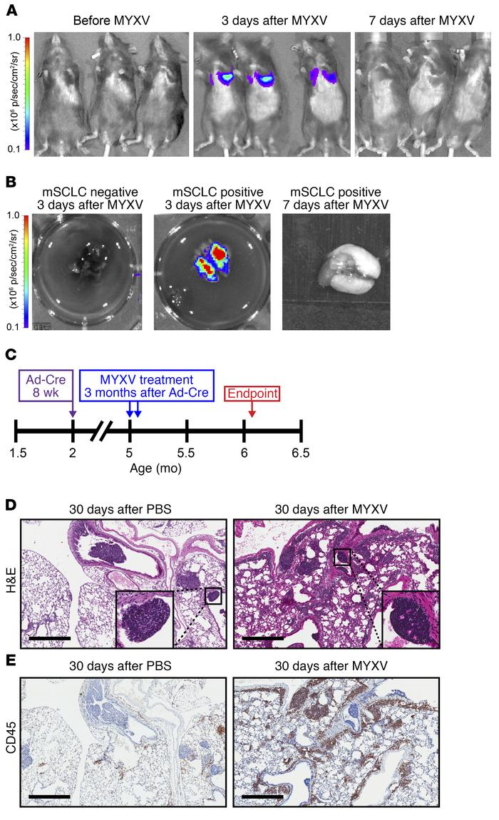 MYXV localizes to the lungs of tumor bearing mice resulting in a prolong...