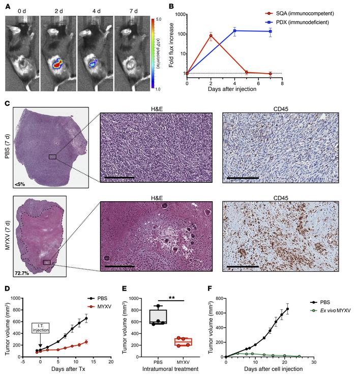 MYXV infection inhibits tumor development and Intratumoral delivery of M...