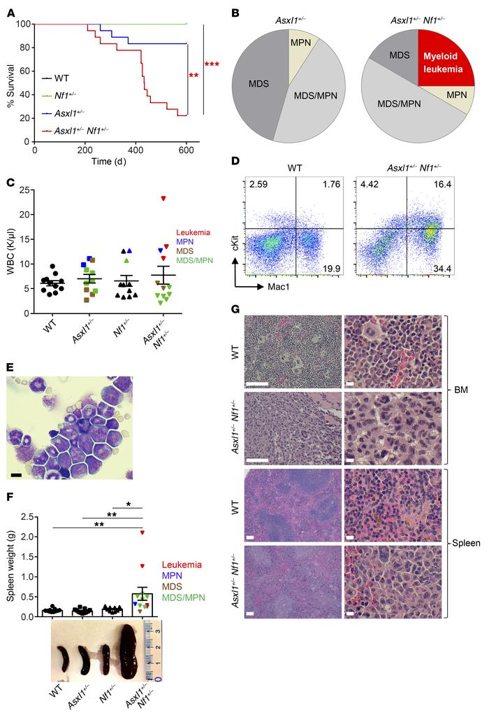 Development of myeloid leukemia in Asxl1+/– Nf1+/– mice. (A) Kaplan-Meie...