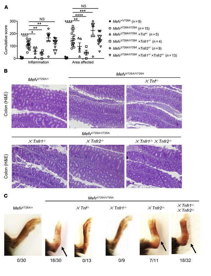 Serosal inflammation in MefvV726A/V726A mice is distinctly mediated by T...
