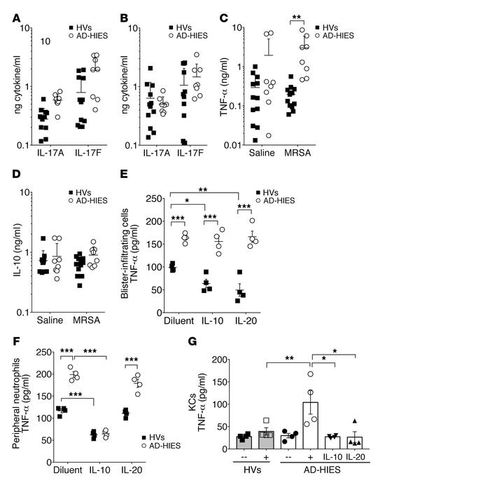 Human STAT3 dysfunction is associated with overproduction of TNF-α. (A–D...