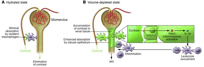 Dependence of contrast distribution and immune activation on volume stat...