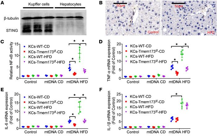 mtDNA from hepatocytes of HFD-fed mice induced activation of NF-κB and i...