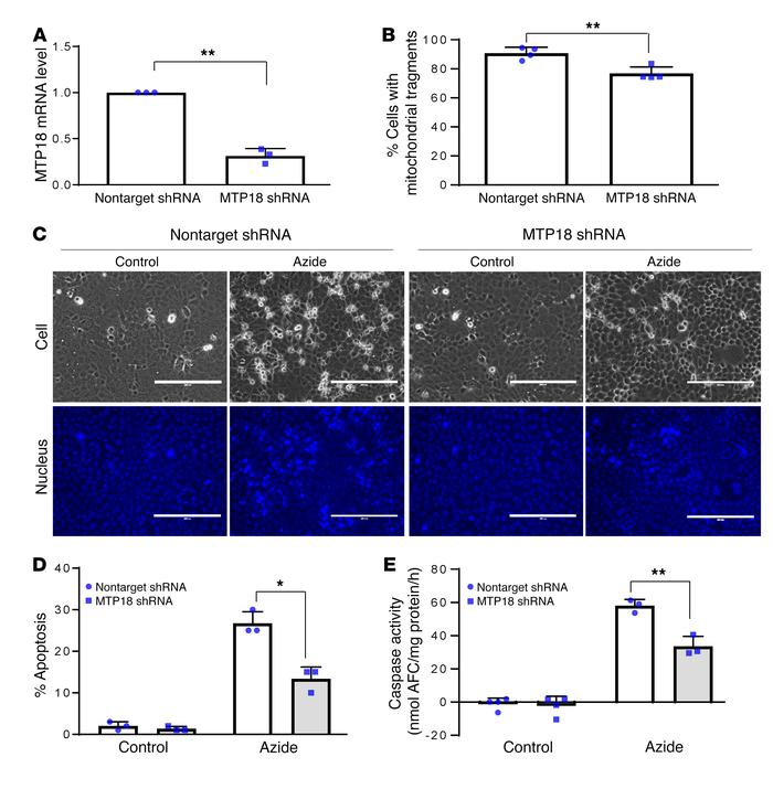 MTP18 promotes mitochondrial fragmentation and apoptosis in renal tubula...