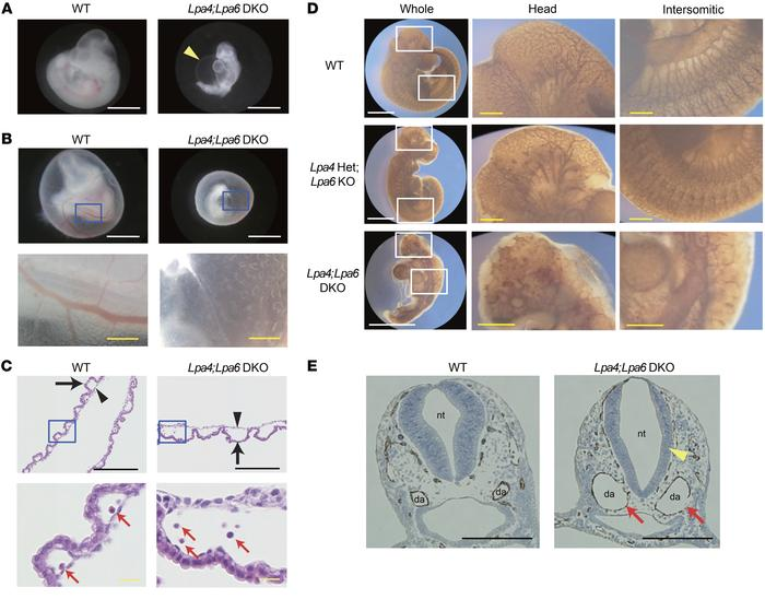 Lpa4;Lpa6-DKO embryo proper and yolk sac have vascular abnormalities. (...