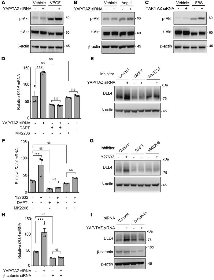 YAP/TAZ suppress β-catenin– and NICD-mediated DLL4 induction. (A–C) YAP/...