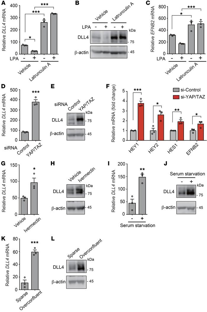 LPA-induced YAP/TAZ activation suppresses DLL4 expression in ECs. (A–C) ...