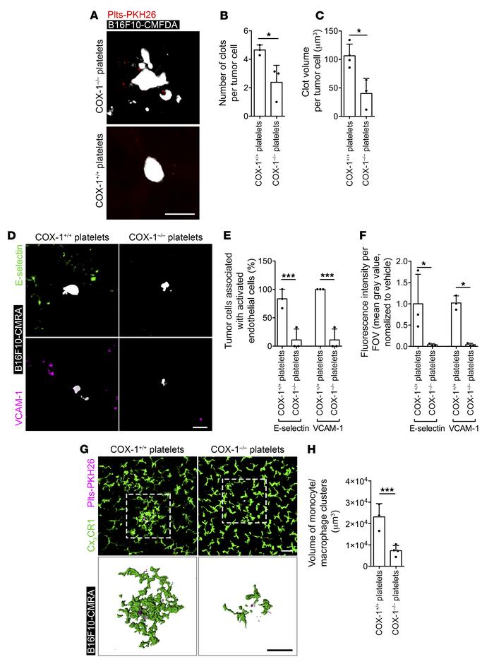 TXA2 from platelets mediates the generation of the prometastatic intrava...