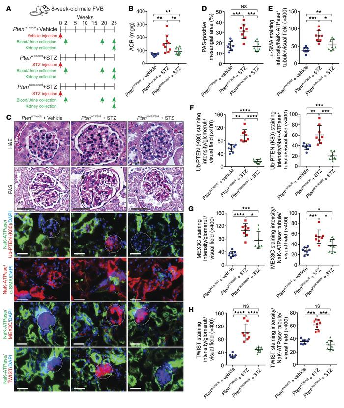 Inhibition of PtenK27-polyUb alleviates STZ-induced diabetic nephropathy...