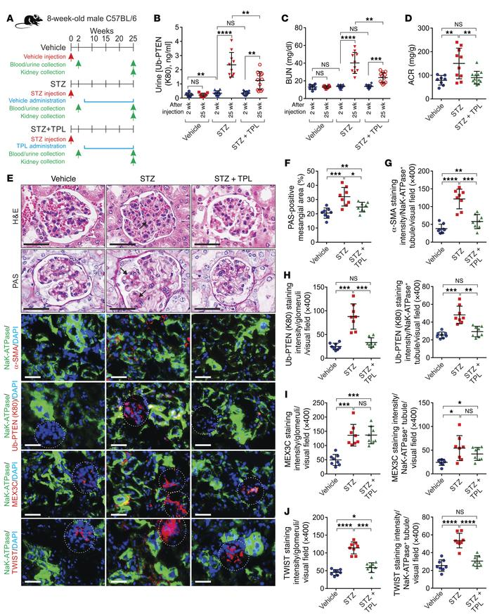 Triptolide prevents diabetic nephropathy. (A) Scheme of the experimental...