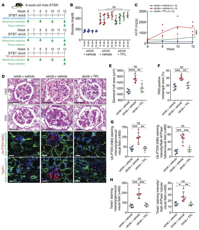 Pharmaceutical inhibition of PtenK27-polyUb alleviates diabetic nephropa...