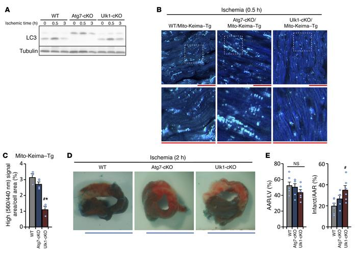 Ulk1- but not Atg7-dependent autophagy protects the heart against ischem...
