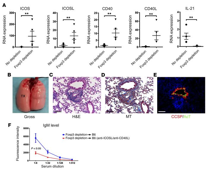 AMR of Foxp3+ T cell–depleted lung grafts can be prevented by blocking I...