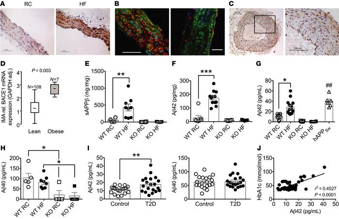 BACE1 vascular expression and activity and plasma levels of Aβ in mice a...