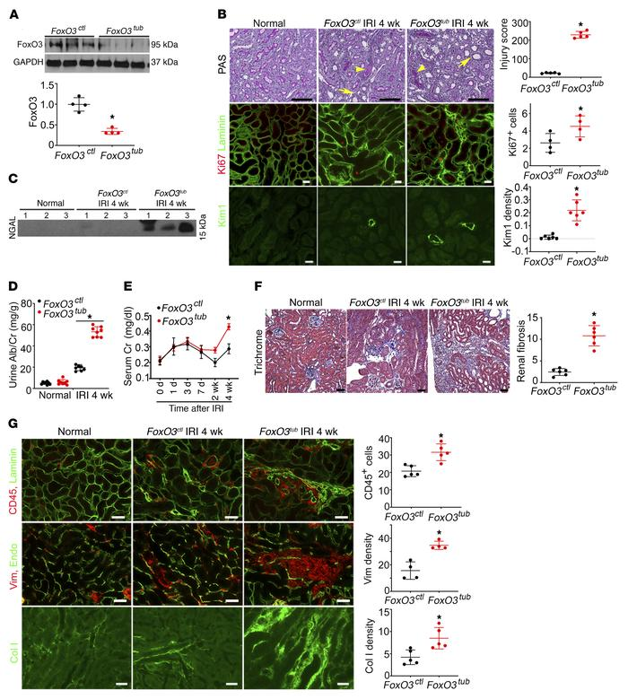 Tubular FoxO3 deletion during the AKI-to-CKD transition accelerates CKD ...