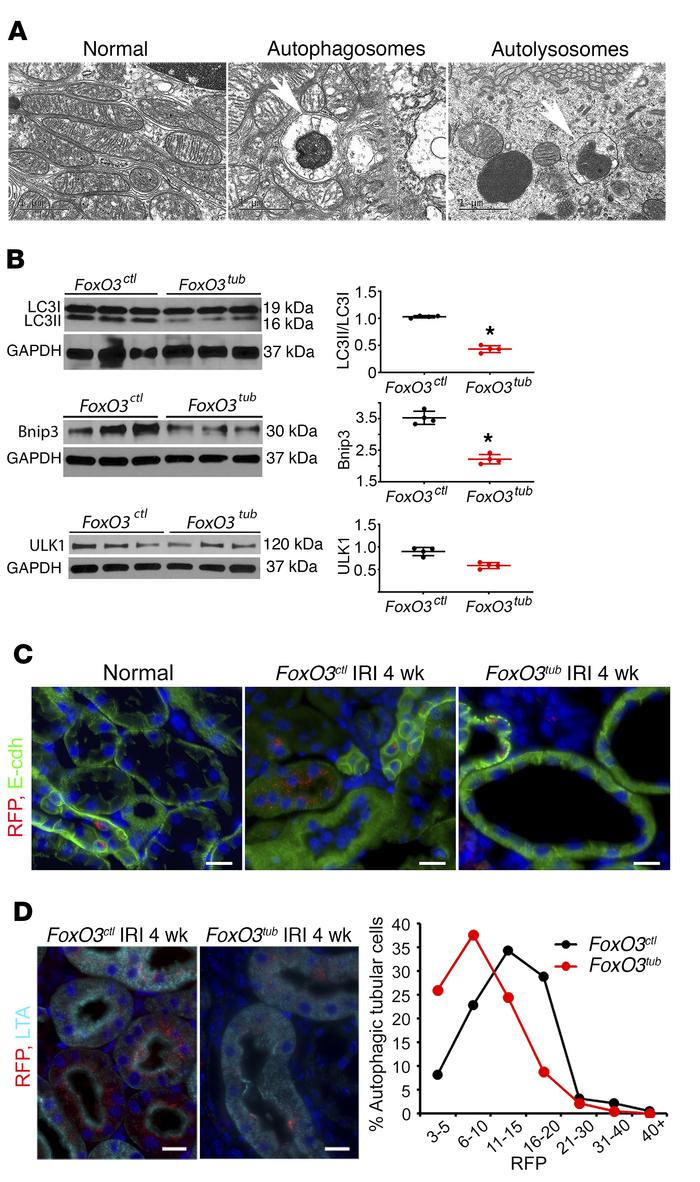Loss of FoxO3 results in reduced autophagic adaptation. Tubular FoxO3 wa...