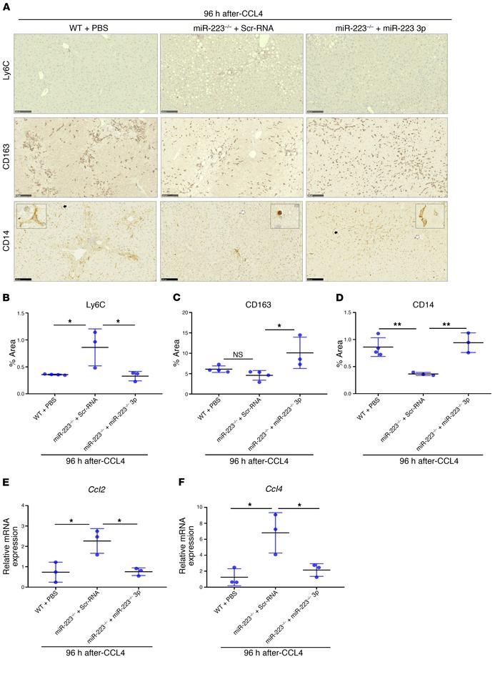 miR-223 deficiency reduces the hepatic restorative macrophage compartmen...