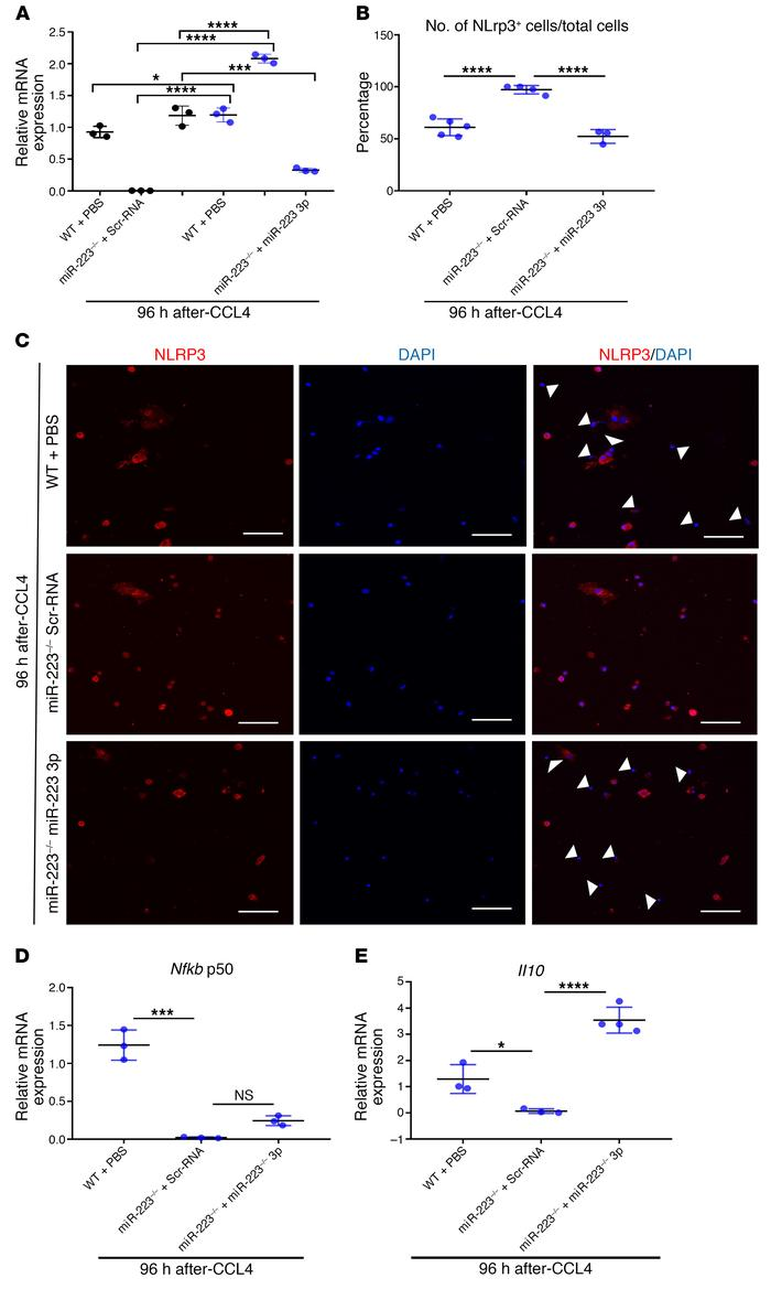 miR-223 abolition augments NLRP3 expression in hepatic macrophages durin...