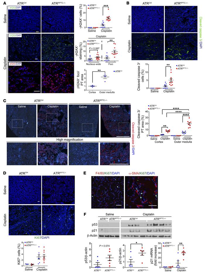 ATRRPTC–/– mice have enhanced DNA damage and apoptosis after cisplatin i...