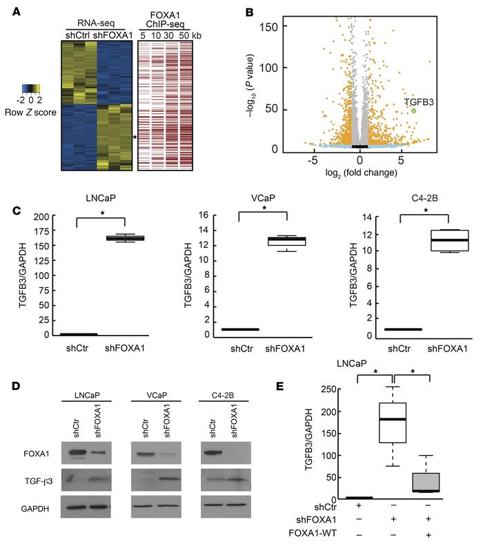 FOXA1 suppresses TGFB3 gene transcription. (A) Heat map of differentiall...
