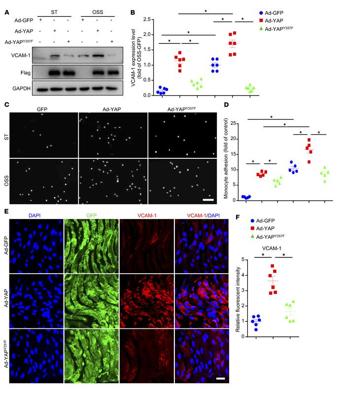 Tyr357 phosphorylation of YAP induced endothelial activation in vitro an...