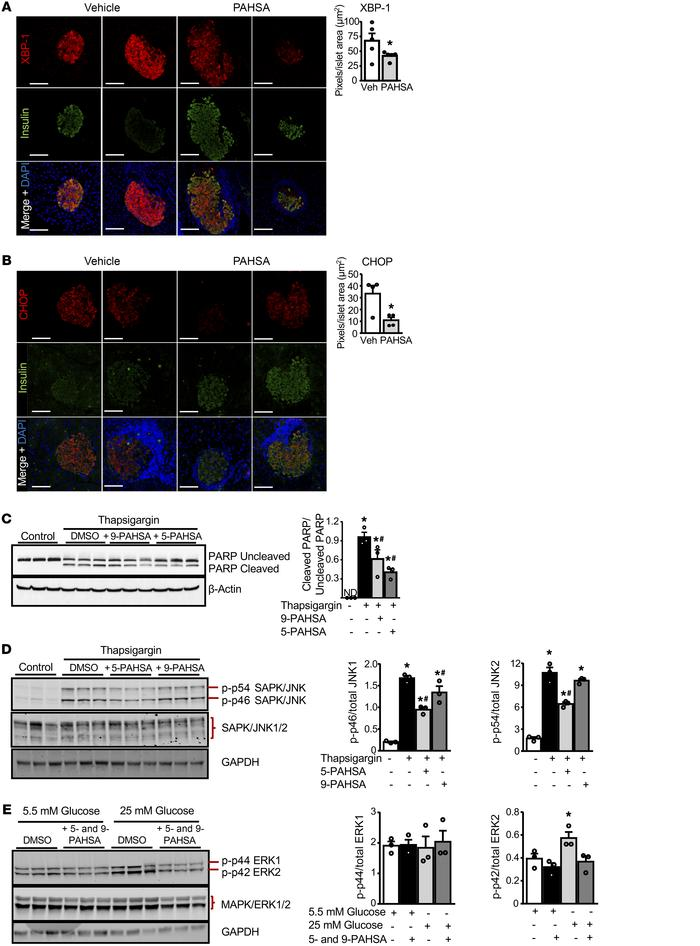 PAHSA treatment attenuates β cell death by inhibiting ER stress. Female ...